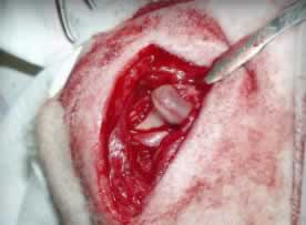 Возможно ли лечение коксартроза тазобедренного сустава без операции